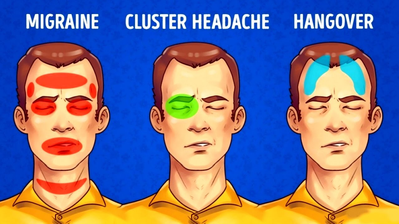 How to Get Rid of Headaches - Types of headaches!